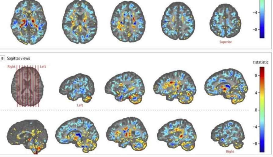 Something happened to their brains: study reveals