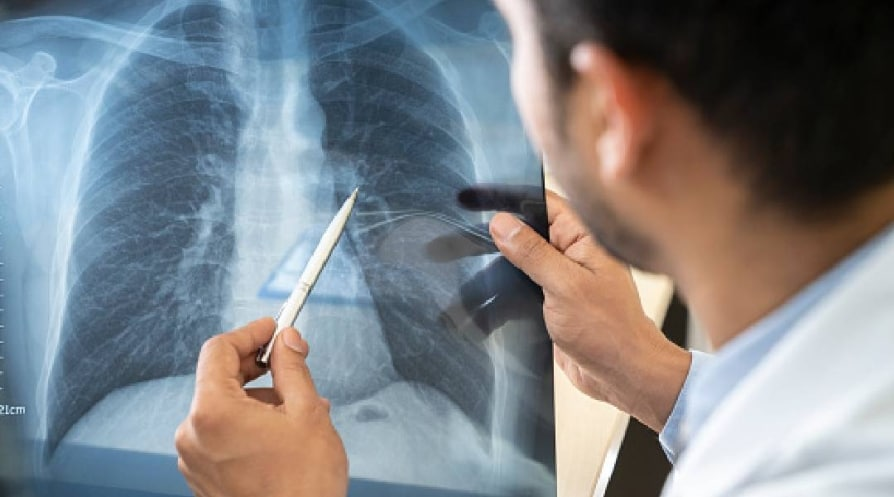 The doctor is analyzing the patient's lung X-rays, the flu concept or the Covid-19 virus. - stock photo