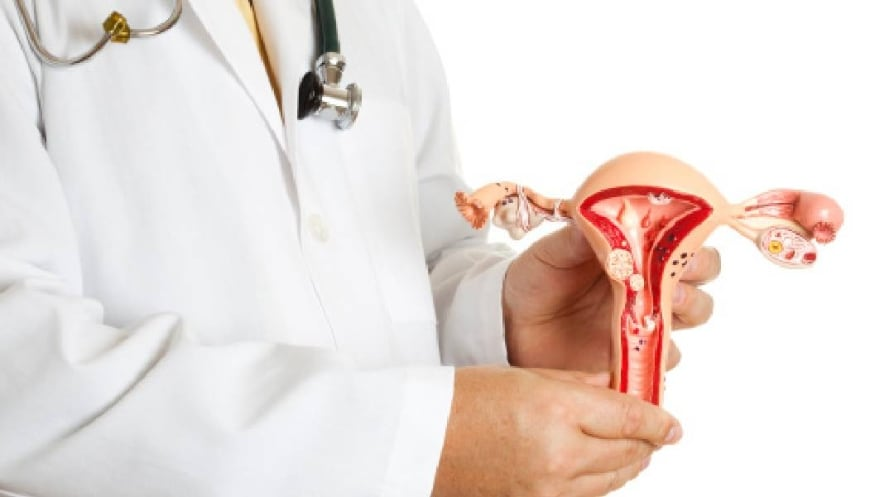 Doctor holding uterus model - stock photo A doctor holding a model of Uterus and Ovaries with some most common pathologies, endometriosis, adhesions, fibroids, salpingitis, cysts, pedunculated fibroid tumor, polyps and various carcinoma.